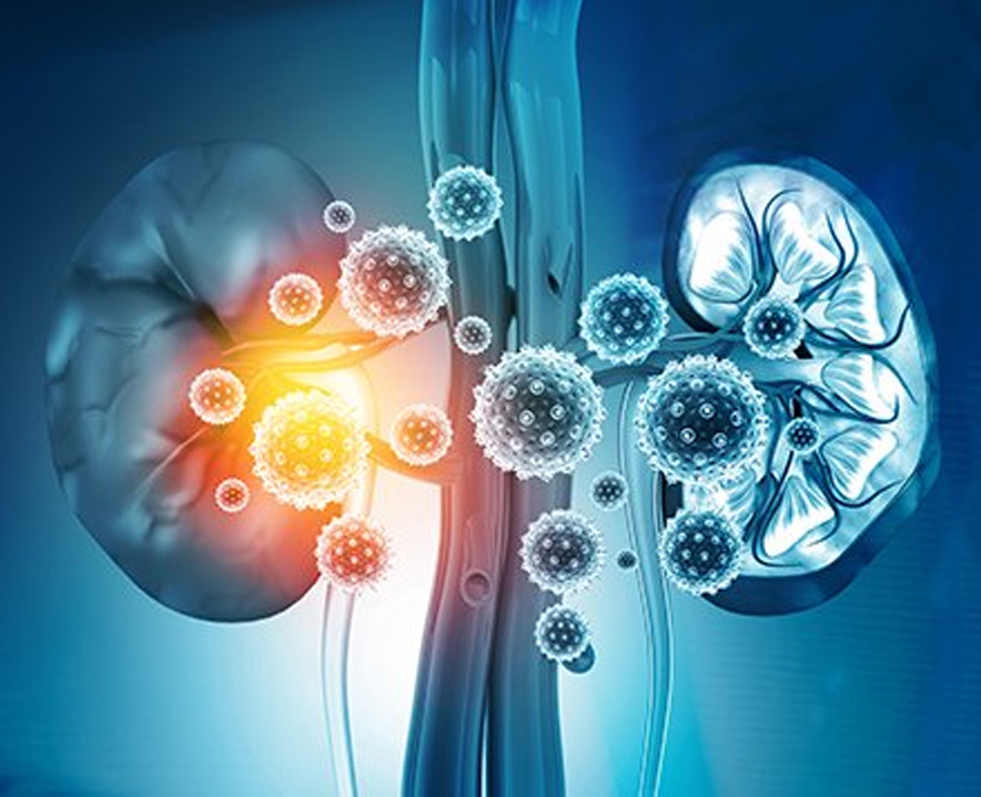 Coronavirus- Covid-19 Guidance For Patients With Kidney Disease